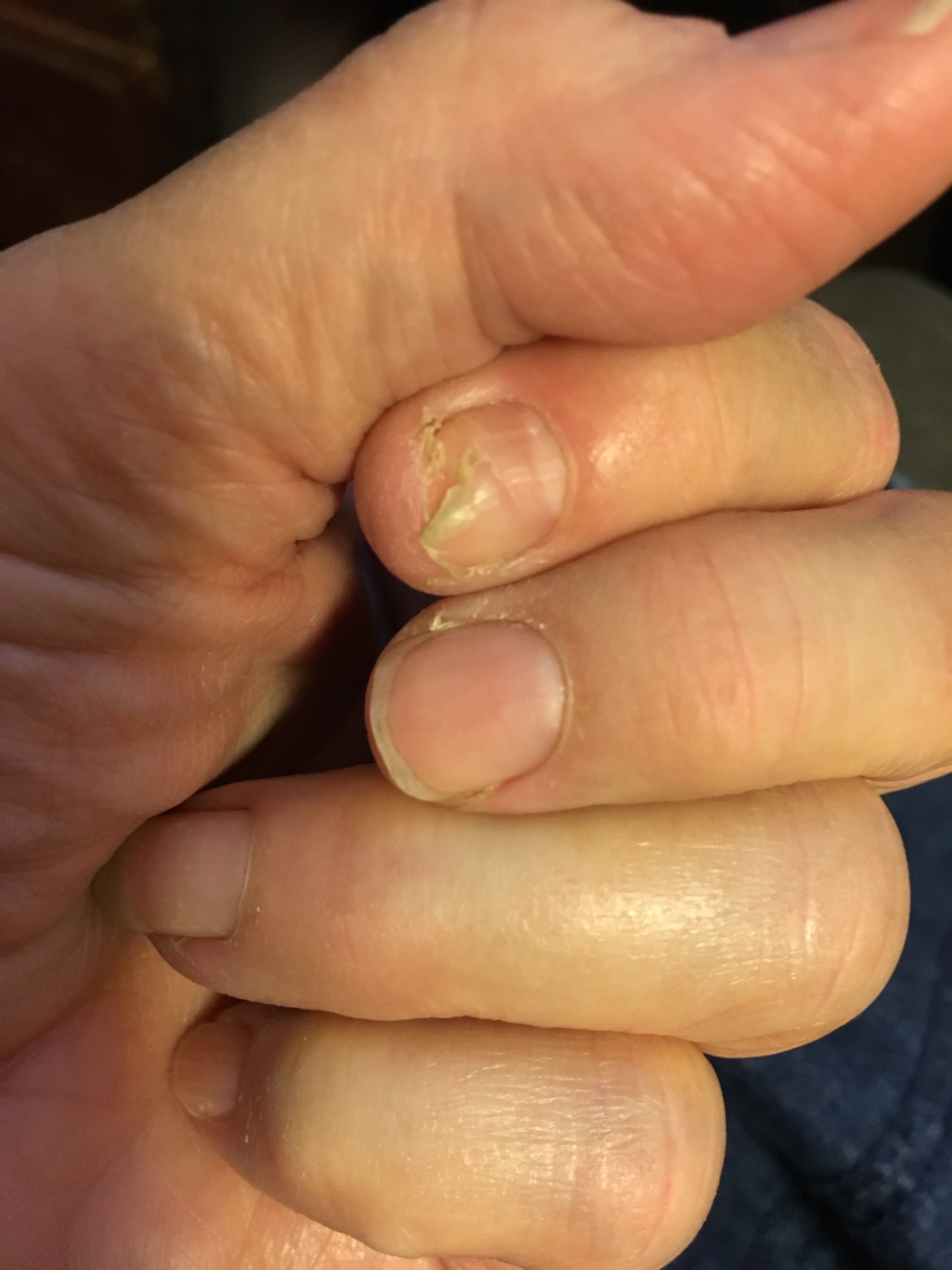 That Problem Finger Nail